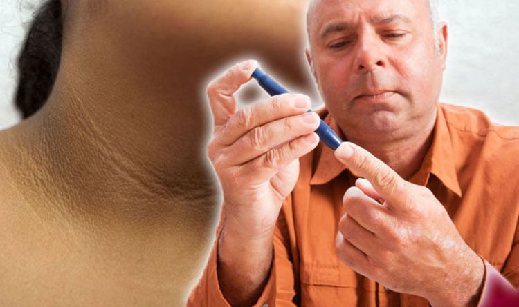 Diabetes type 2 warning - three 'unusual' signs of the condition you should never ignore